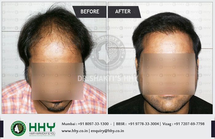 hair transplant result by hhy