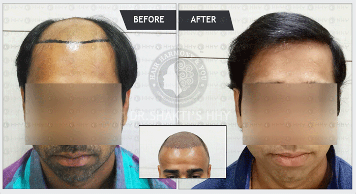 Thumbnail for Hair Transplant Result with Visible result | Fue Hair Transplant
